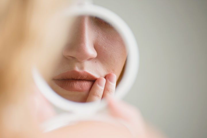 How to Treat Eczema on Your Face