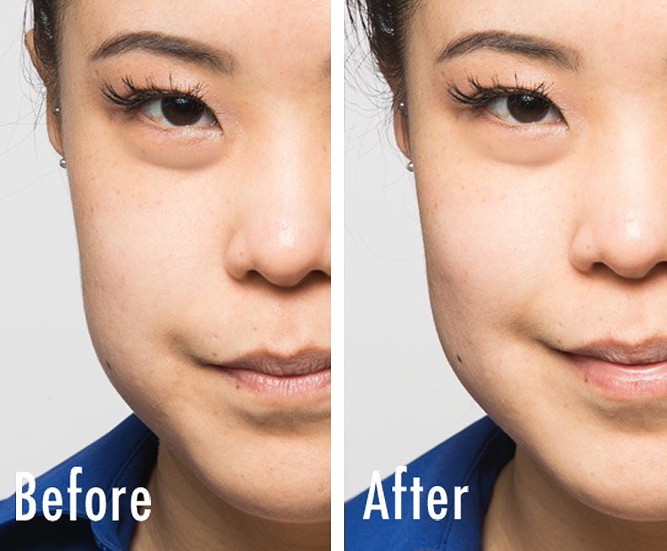 joann-before-after I Dermstore Blog