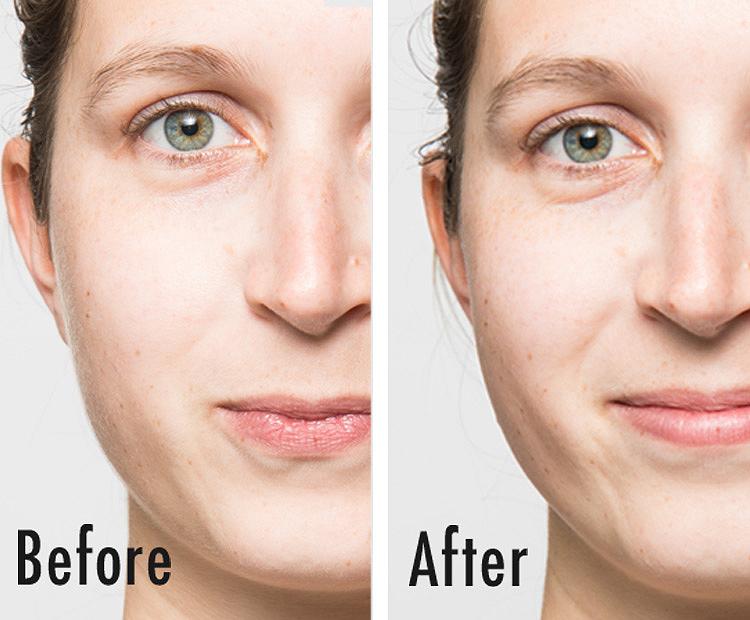 kaitlin-before-after I Dermstore Blog