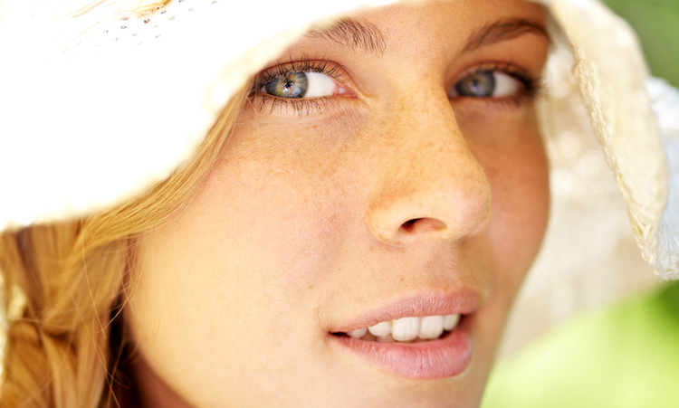 Freckles vs. Moles: A Dermatologist Decodes Those Dots