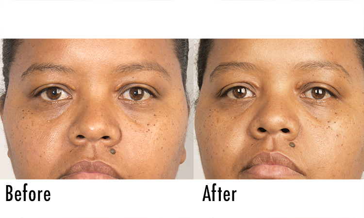 Fillerina Review: Before and After Pictures 4 | Dermstore Blog