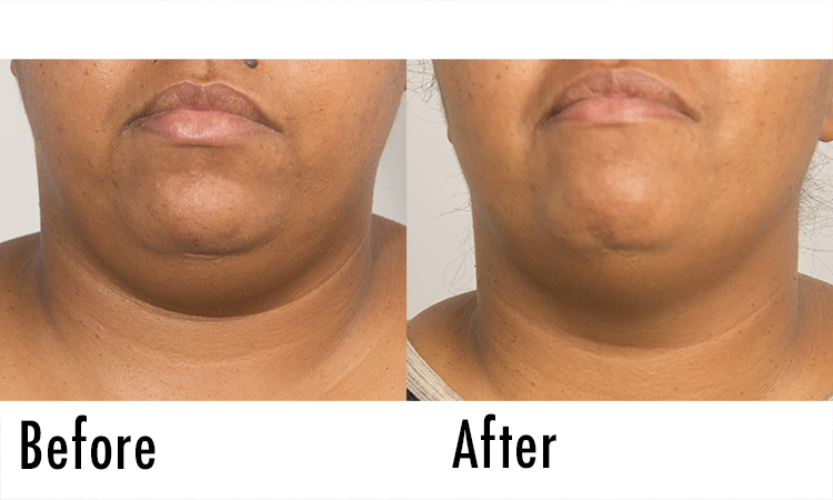 Fillerina Review: Before and After Pictures 3 | Dermstore Blog