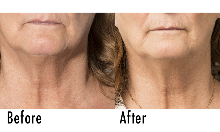 Fillerina Review: Before and After Pictures 2 | Dermstore Blog