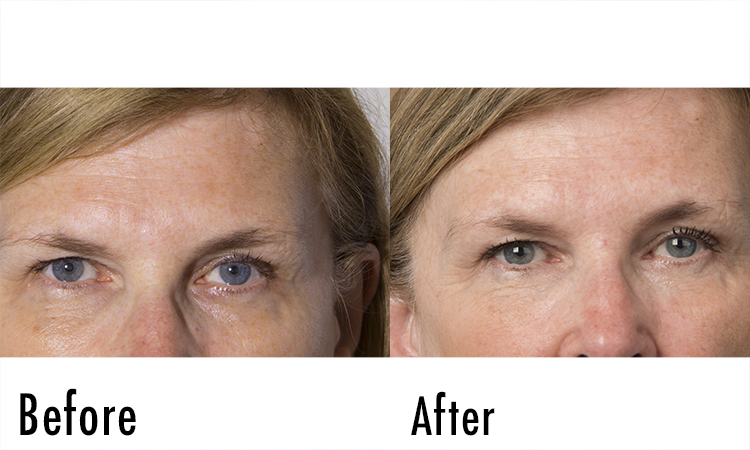 Fillerina Review: Before and After Pictures 1 | Dermstore Blog