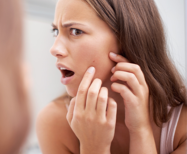 woman with pimple on cheek