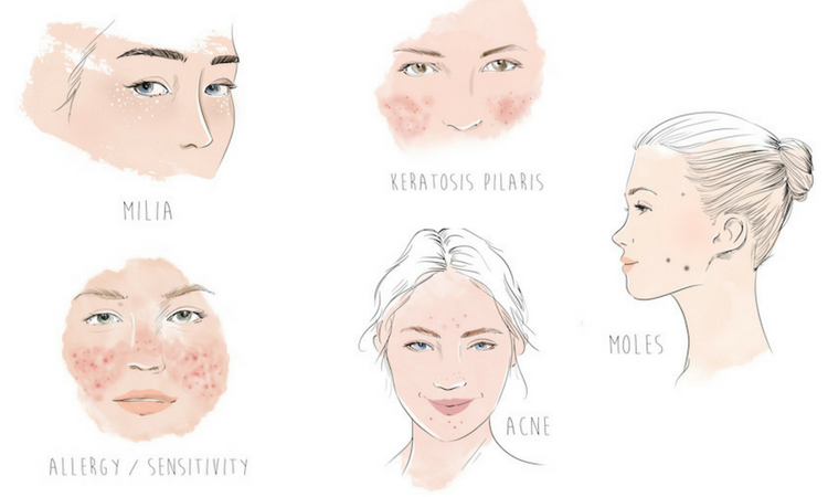 What Are Those Tiny Bumps on Your Face? 5 Possibilities