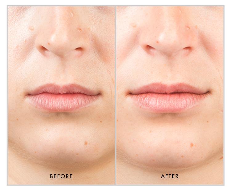 Kaitlin lip plumper blog