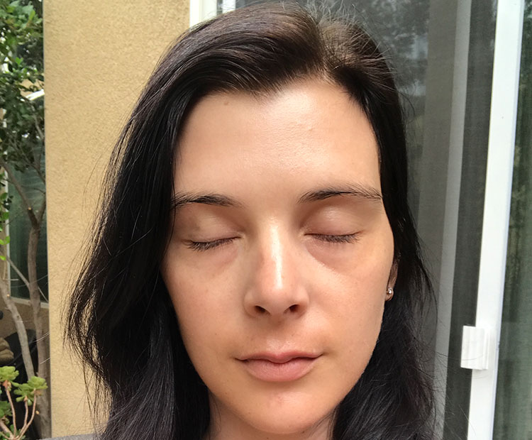 jessica microneedling after pic I Dermstore Blog