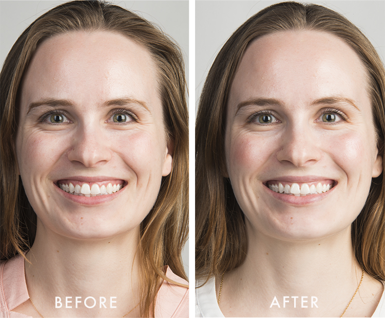 kat before after white duo kit I Dermstore Blog