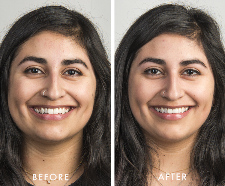 mel before after white duo kit I Dermstore Blog
