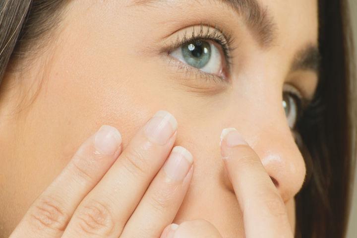 woman applying acne treatment