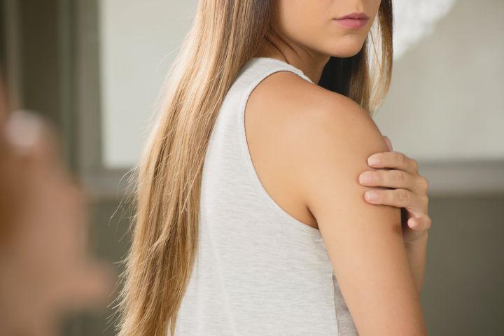 How to Reduce the Appearance of a Mole-Removal Scar