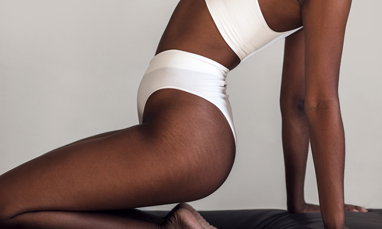 Refine Those Lines: 6 Best Products That Will Improve the Appearance of Stretch Marks
