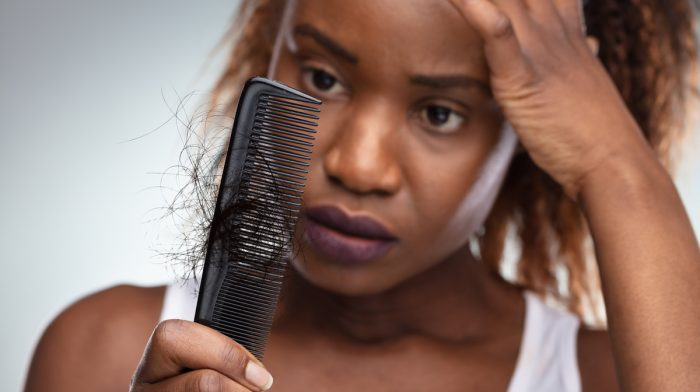 What Is Thyroid-Related Hair Loss?