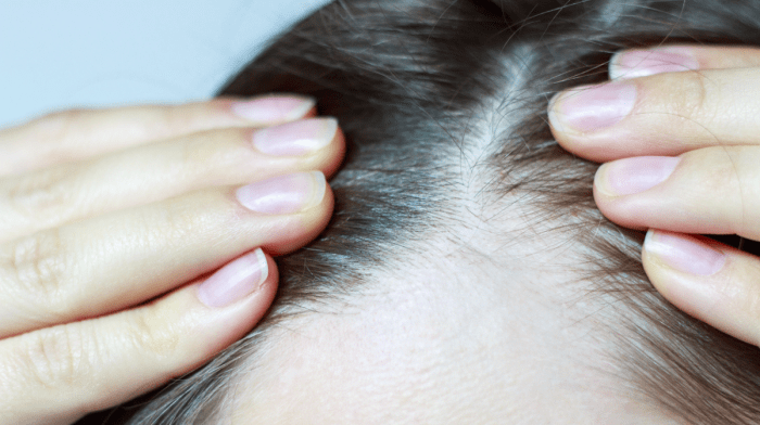What To Do For Thinning Hair