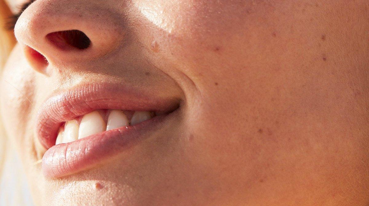« Maskné », ou acné du masque : comment s'en débarrasser ?