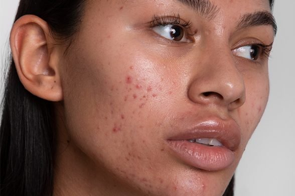 How to tackle scars and pigmentation