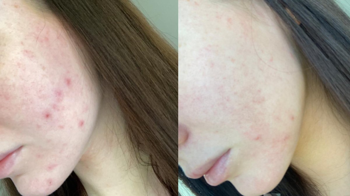 We used blue light therapy for a month and here are the results