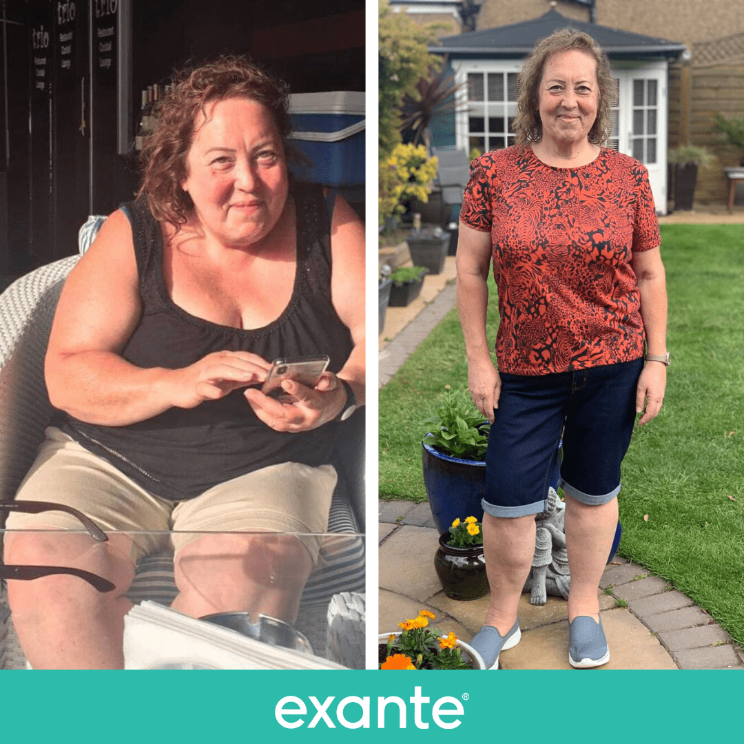 Joanne put her diabetes into remission on an 850 calorie shakes and soups plan