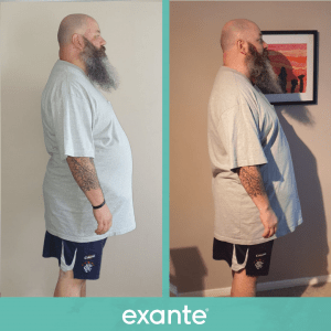 Tommy has lost weight following the exante 800 plan