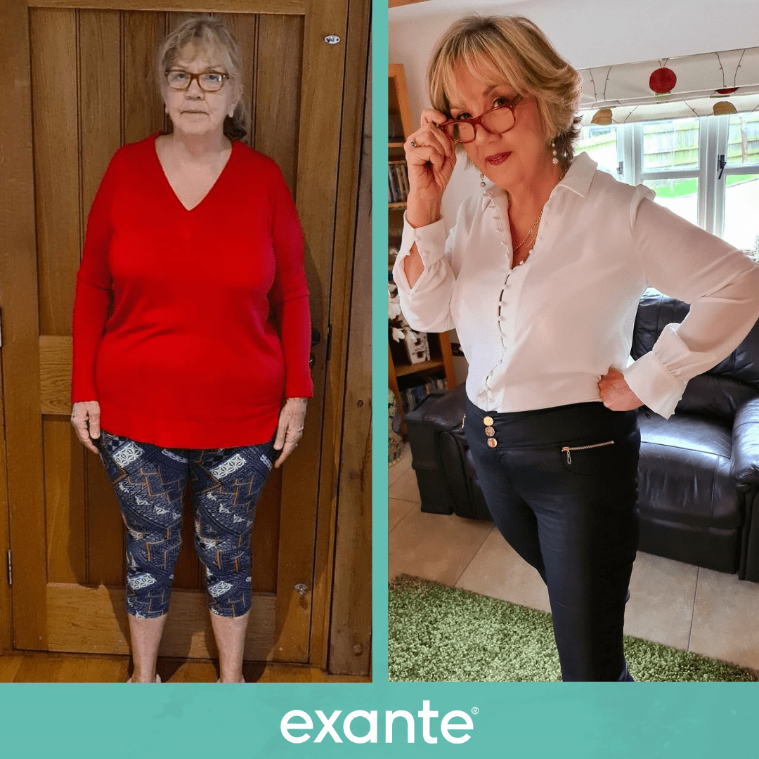 Doreen has lost over 6 stone on exante!