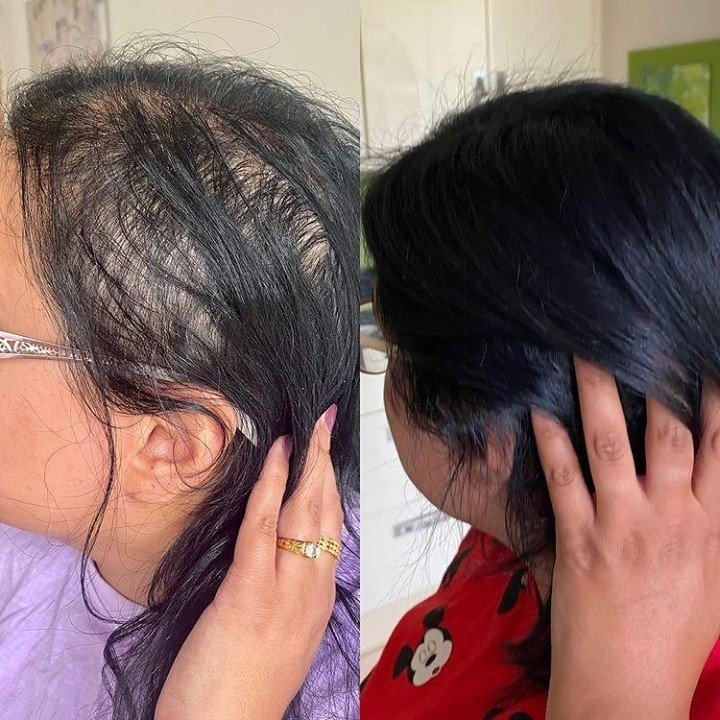 My Hair Growth Journey | 3 Months to Thicker Hair