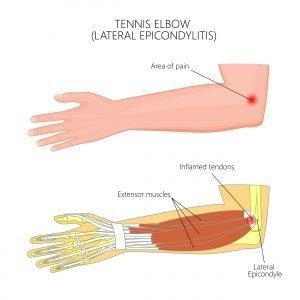 Tennis- & Golferarm | Übungen & Behandlung