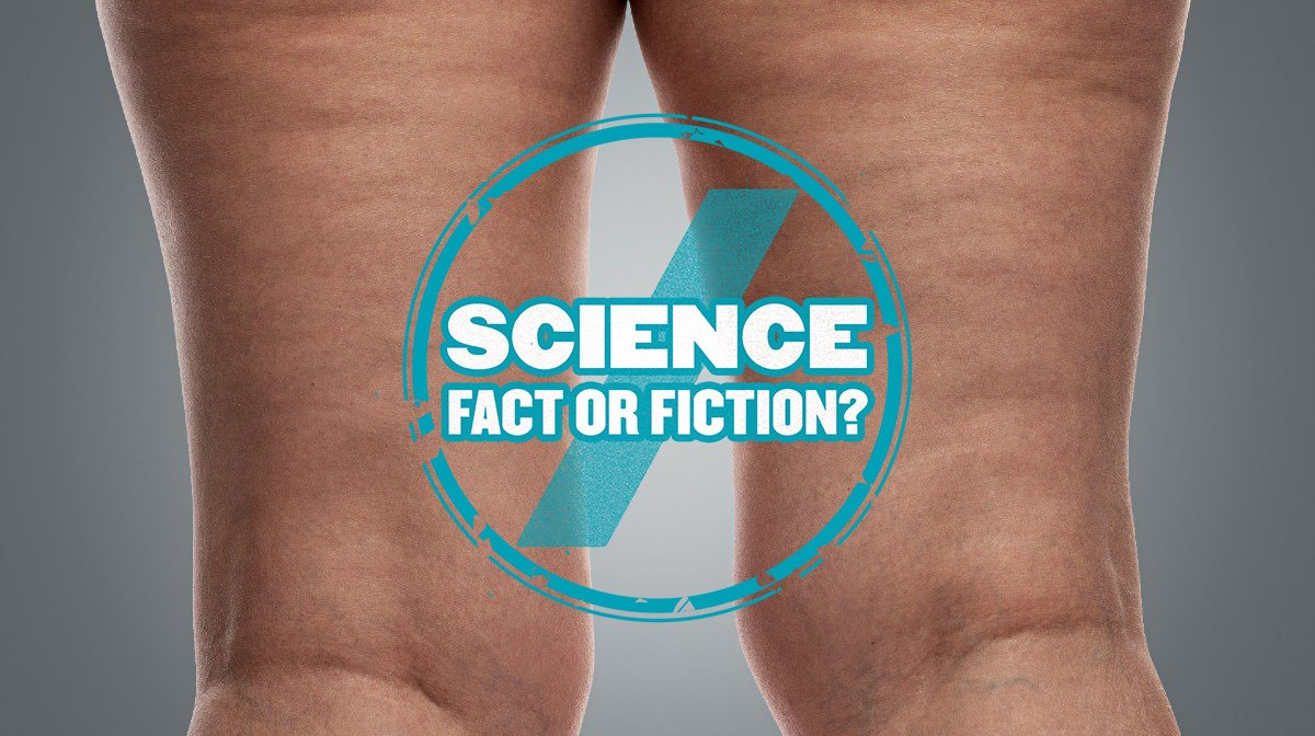 """Getting """"Rid"""" Of Cellulite: Science Fact Or Fiction"""