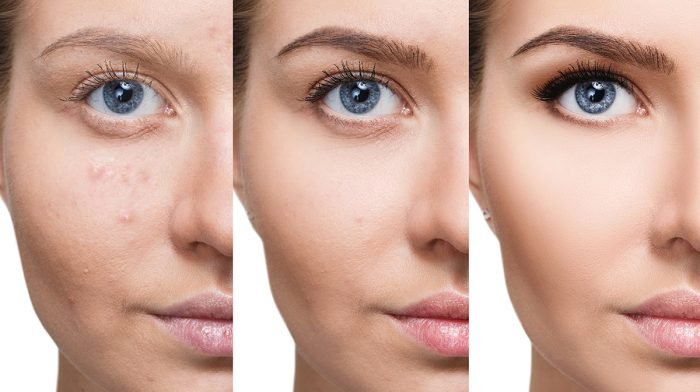 Here's How To Conceal Blemishes And Keep Them Hidden