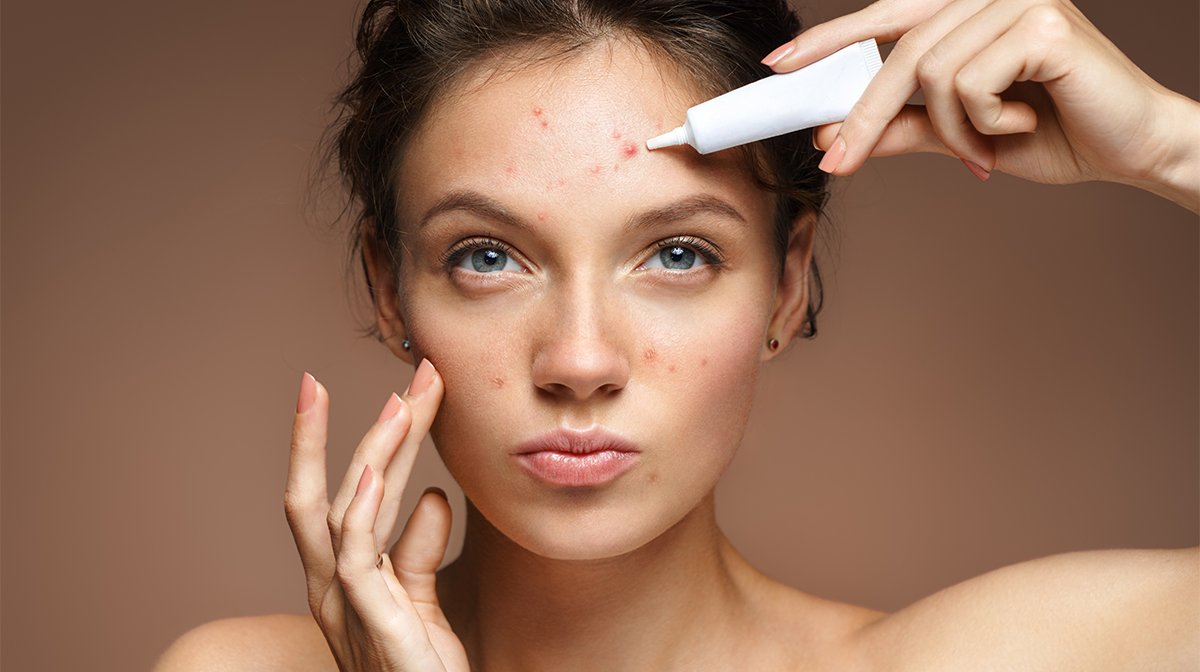 Does Sulphur Really Clear Up Acne And Blemishes?