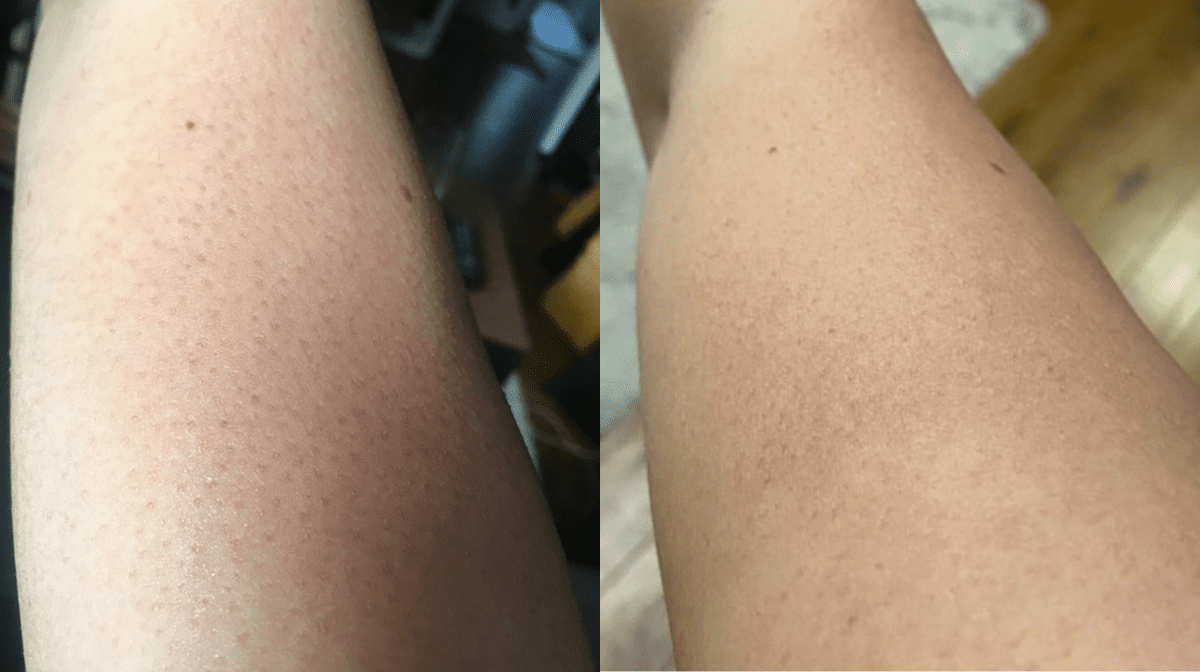 How I Got Rid Of The Bumps On My Upper Arms | Testimonial