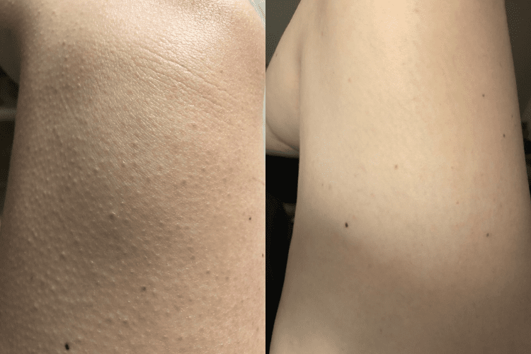 before and after keratosis pilaris on my legs