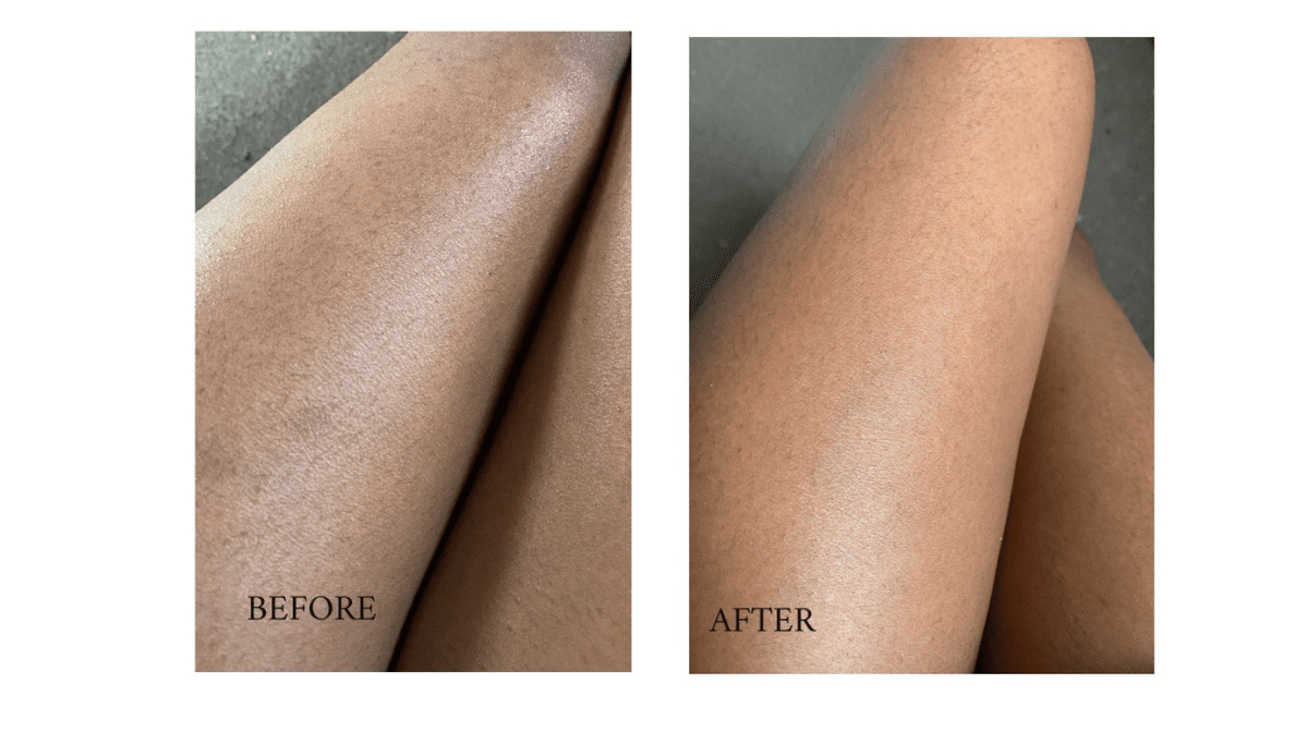 How I Treated The Ingrown Hairs On My Legs | Testimonial