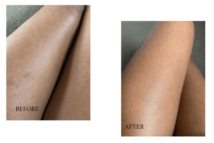 before and after images of ingrown hairs on legs