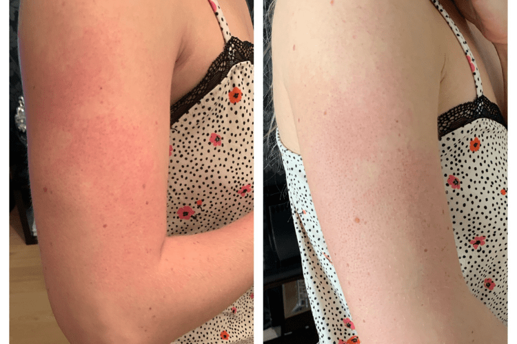 Red bumps on arms before and after