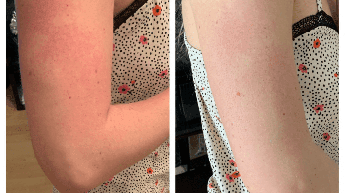 Treating The Red Bumps On My Upper Arms | Testimonial