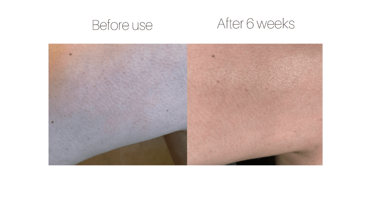 Treating The Bumps On The Back Of My Arms | Testimonial