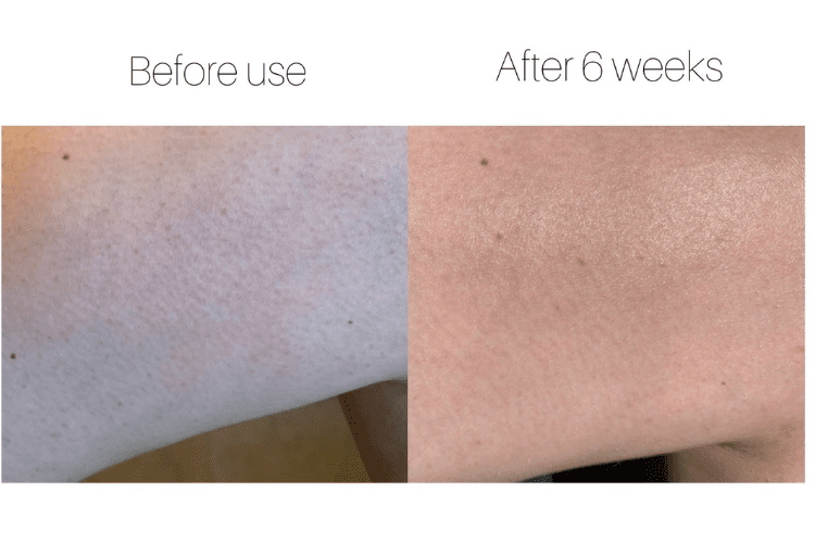 before and after of bumpy skin on back of arms