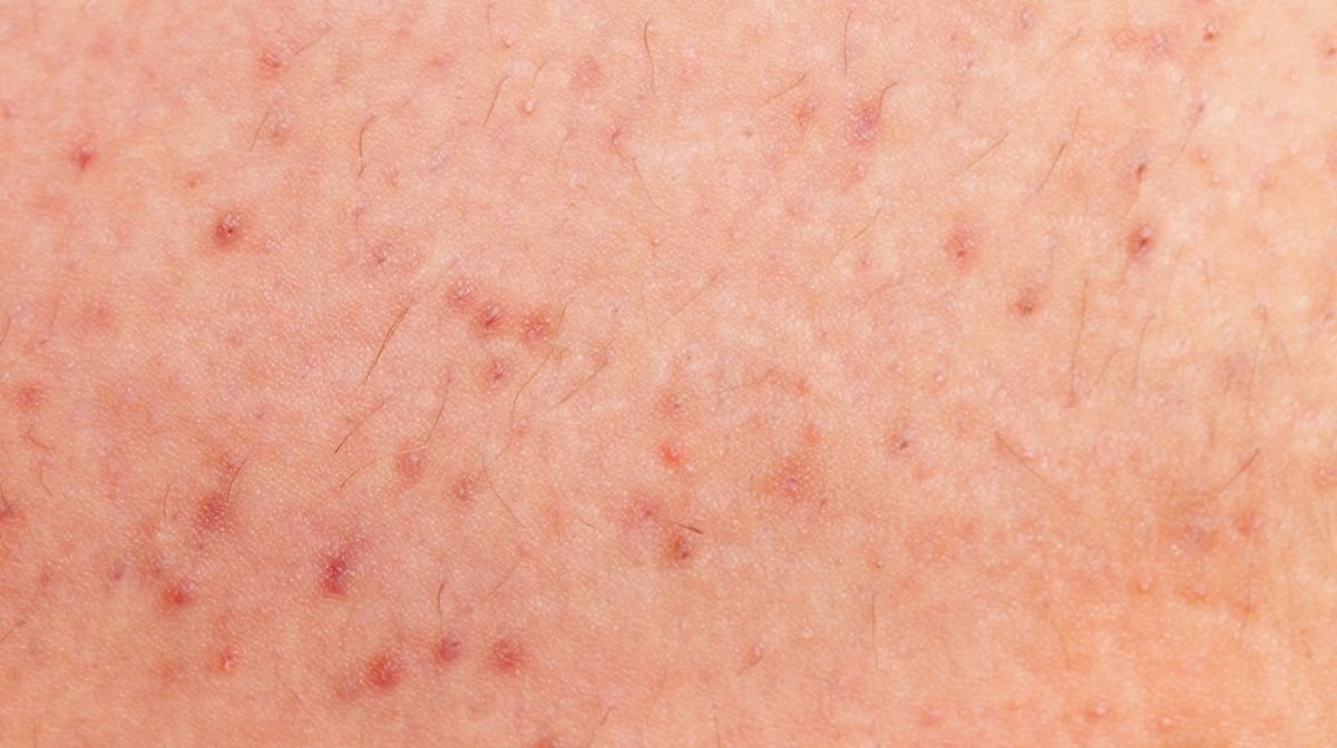 razor bumps that look very similar to spots