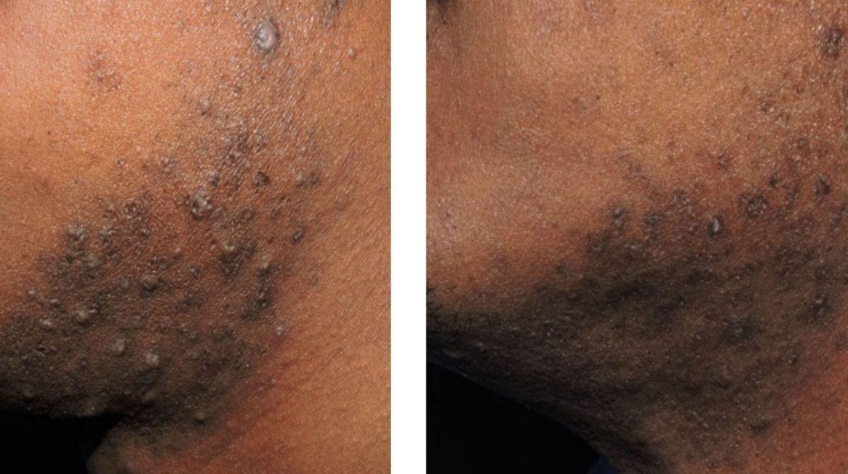 Rasurbrand vermeiden mit dem Gillette SkinGuard Sensitive Rasierer