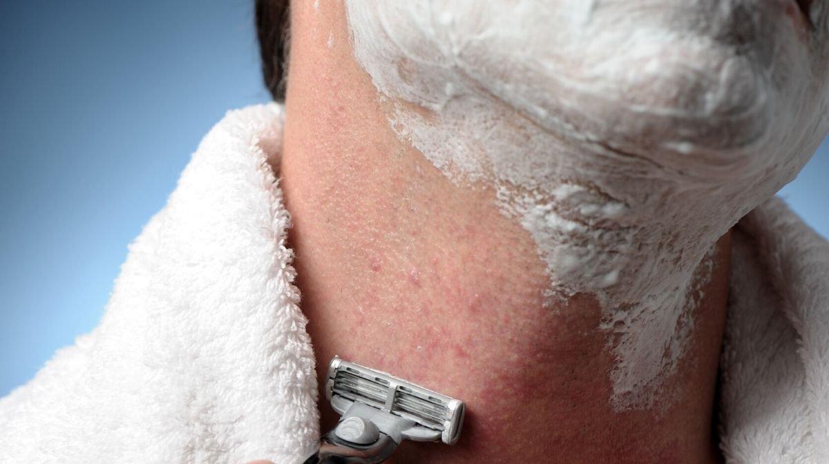 Rasieren trotz Pickeln: So gelingt die Rasur