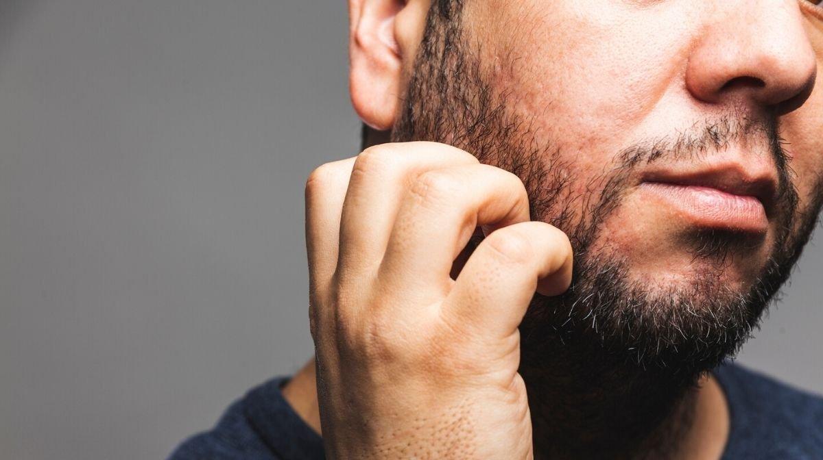 Hilfe, mein Bart juckt, was kann ich tun?