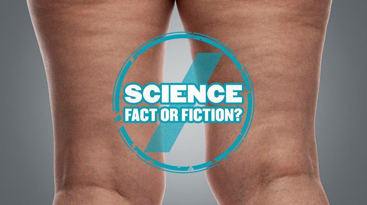 Je van Cellulitis 'ontdoen': Wetenschap of Fictie