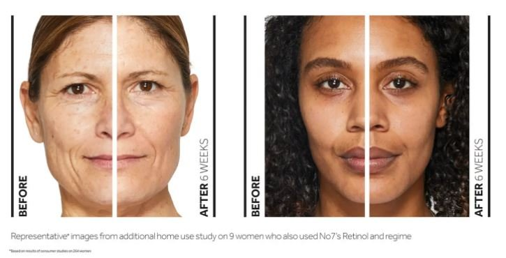 benefits of retinol - image showing the before and after