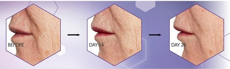 An image showing the results that No7 Advanced Retinol 1.5% Complex Night Concentrate can have on the mouth area within 28 days