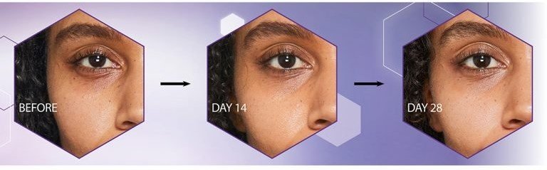 An image showing the results that No7 Advanced Retinol 1.5% Complex Night Concentrate can have on the eye area within 28 days