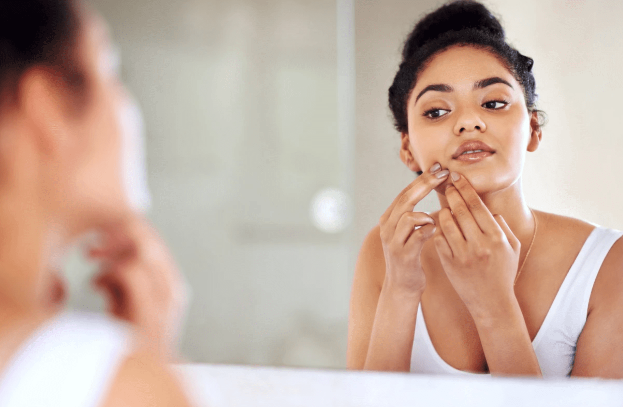 Breaking Out: The Very Real Social & Psychological Effects of Acne