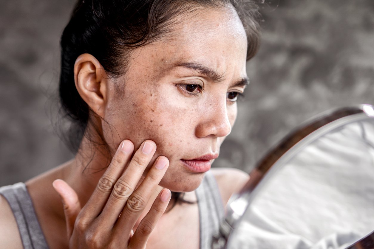 Asian woman having skin problem checking her face with dark spot, freckle from UV light