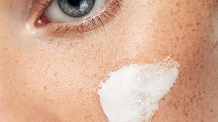 What is milia and how do I treat it? Hint, it's those tiny white bumps…