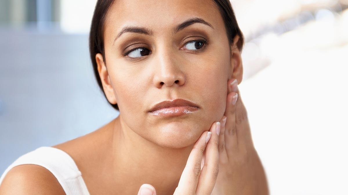 Soluciones para el acné